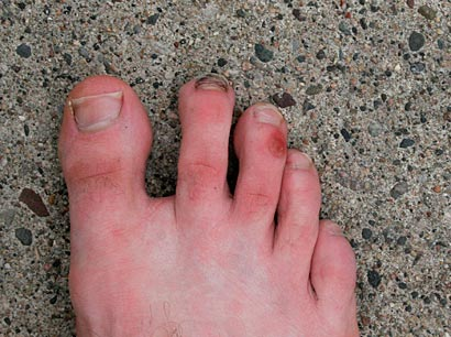 how to get rid of a blister on my toe