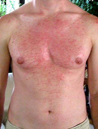 cures for herpes simplex 1