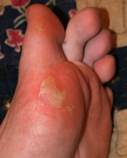 Blisters On My Feet From New Shoes