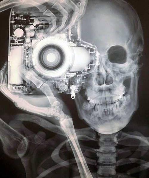Afbeeldingsresultaat voor xray selfie