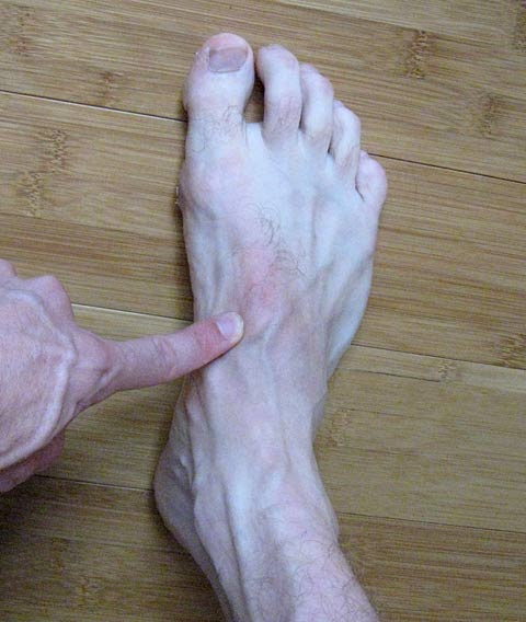 Side Foot Pain-www.stevestenzel.com